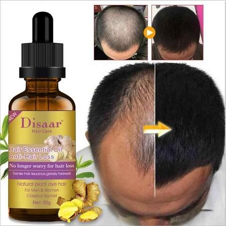 Disaar Hair Essential Oil Anti-Hair Loss-Get Dense Hair