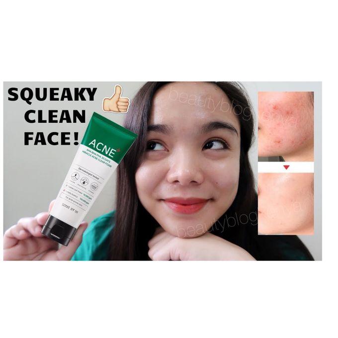 Roushun AHA BHA PHA Miracle Acne Clearing Facial Foam Wash