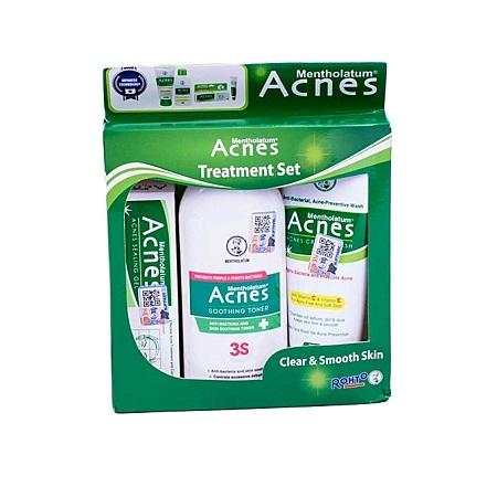 ACNES Treatment With Mentholatum Acnes Set